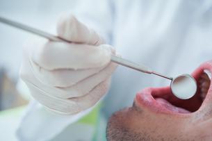 Close up of man having his teeth examinedの素材 [FYI00003646]