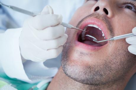 Close up of man having his teeth examinedの素材 [FYI00003652]