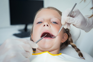 Close up of girl having her teeth examinedの素材 [FYI00003654]