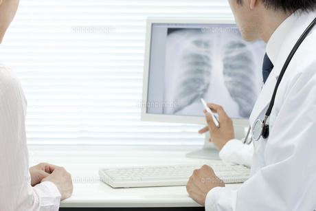 モニターで説明する医師 FYI00040832