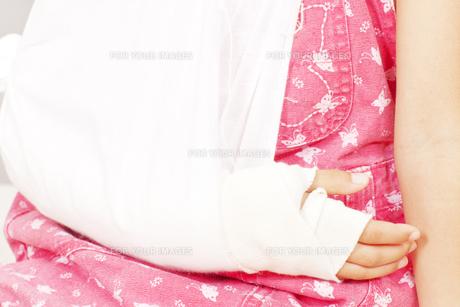 骨折した女の子 FYI00318362