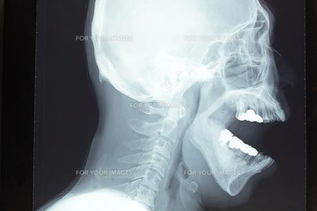頭蓋骨 FYI00430854