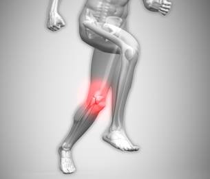 Grey human body running with ankle highlighted in red FYI00488456