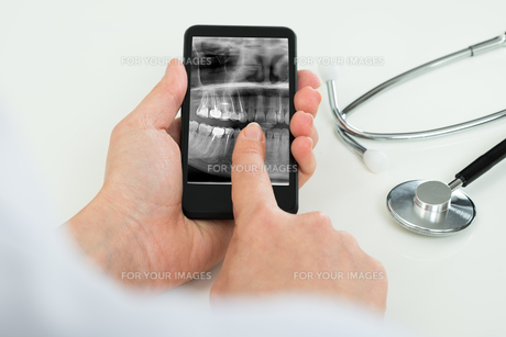 Person With Dental X-ray Film On Mobile Phone FYI00634254
