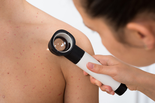 Person Examining Acne Skin With Dermatoscope FYI00663864