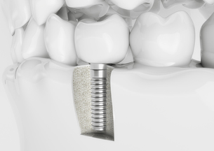 dental implant in a dentition model FYI00769242