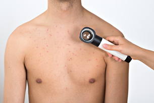 Person Examining Acne Skin With Dermatoscope FYI00770797