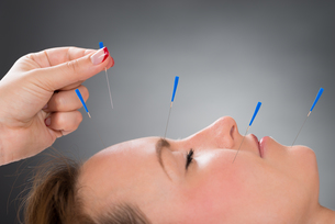Person Putting Acupuncture Needle On Face Of Woman FYI00778581