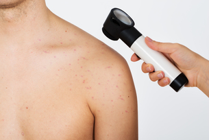Person Examining Acne Skin With Dermatoscope FYI00778684