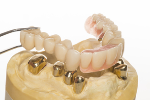 dental model - telekopkombinationsprothese FYI00870755